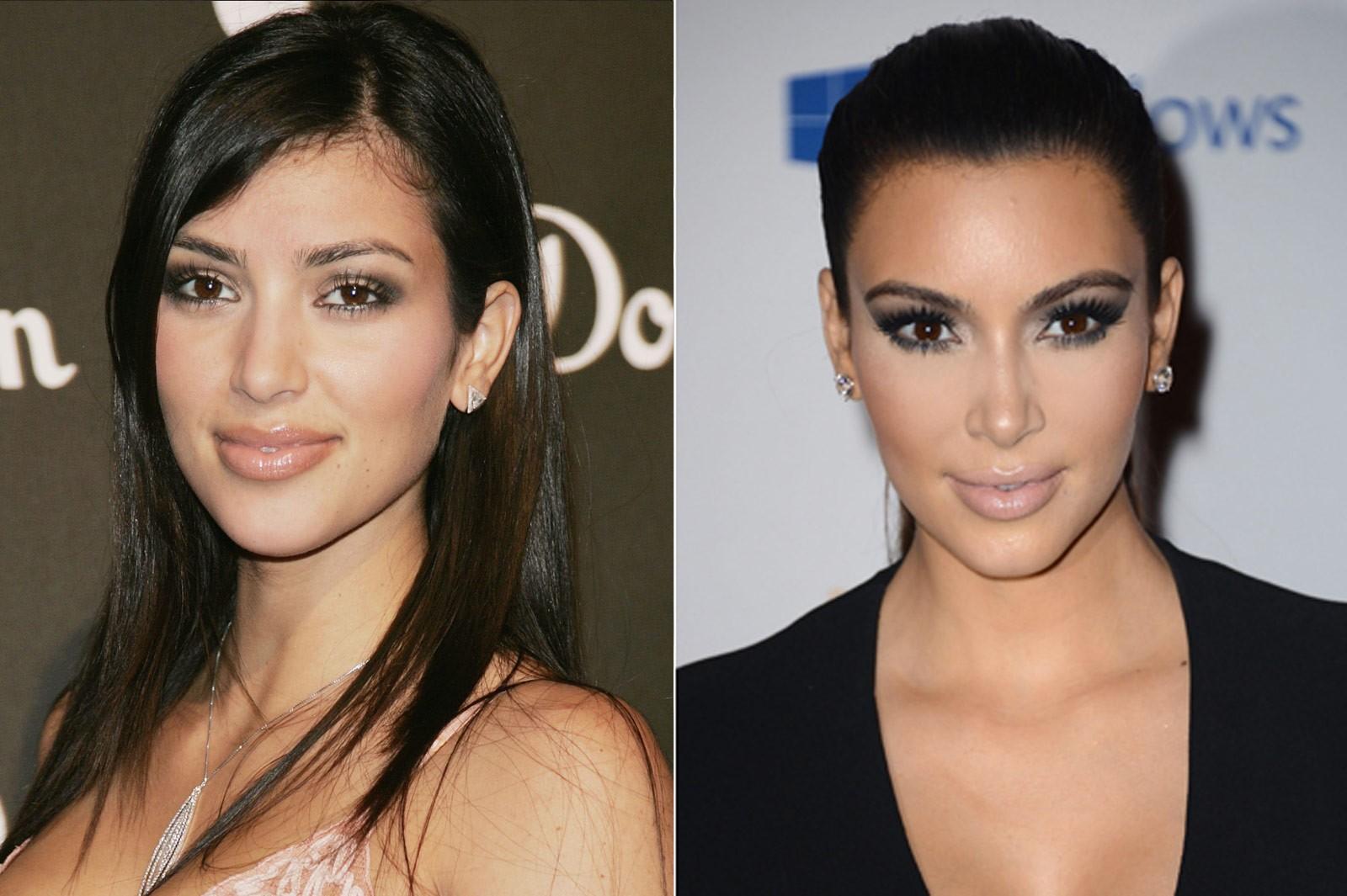 Ким Кардашьян фото до и после пластики